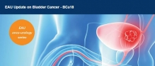 EAU Update on Bladder Cancer 8. - 9. 6. 2018, Mnichov