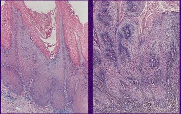 Solkoderm s papilomy na krku